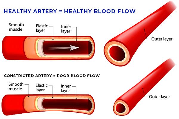 Healthy Blood Flow for Healthy Circulation