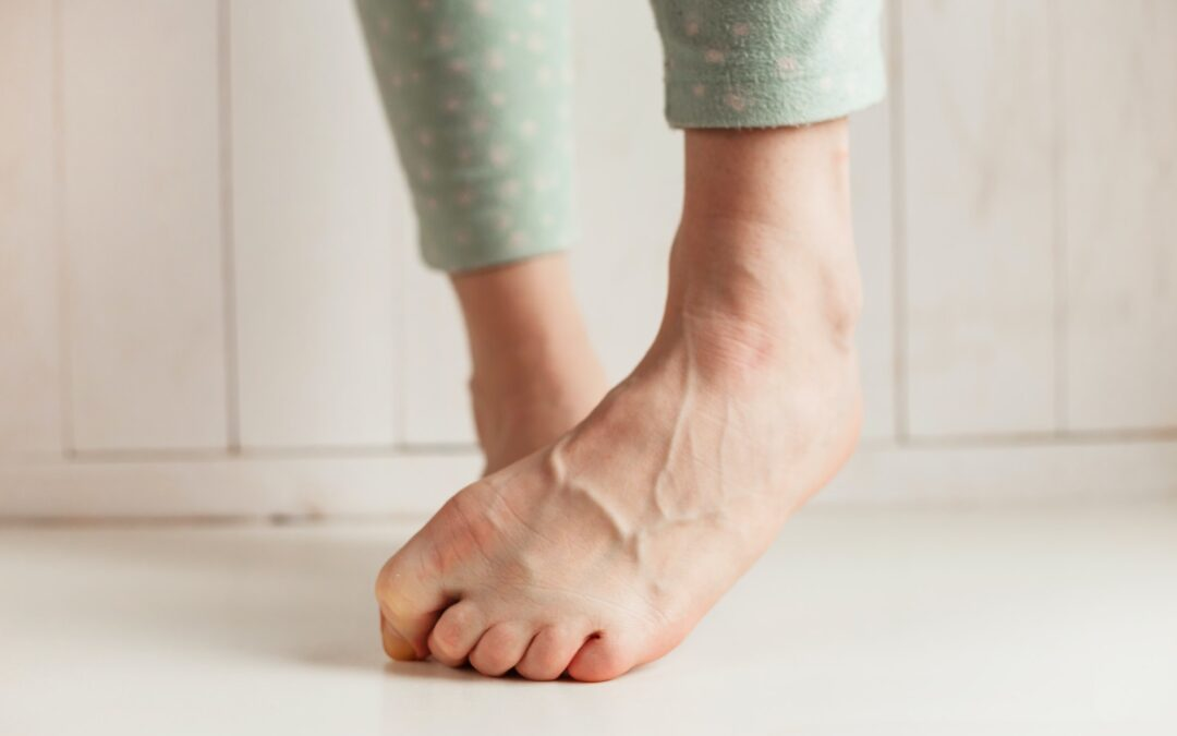 How to Get Healthy Veins & Keep Them Healthy