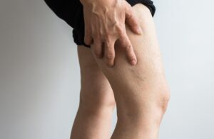 How Do You Check Circulation?veins on the elderly woman legs,Close up