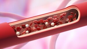 Blood Vessel Health, How to Take Care of your Blood Vessels