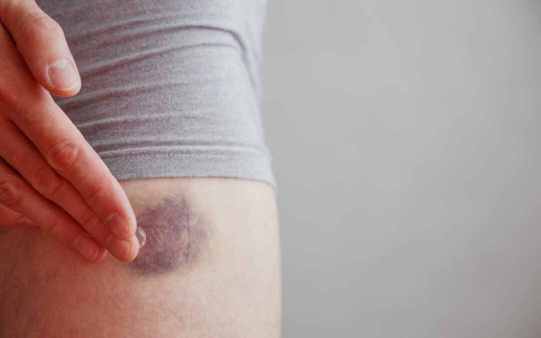 What Are the Signs of Bad Blood Flow?